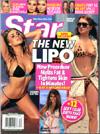 Star Magazine smart lipo article