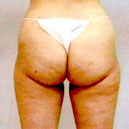 Butt Augmentation Miami Brazilian Butt Lift Miami